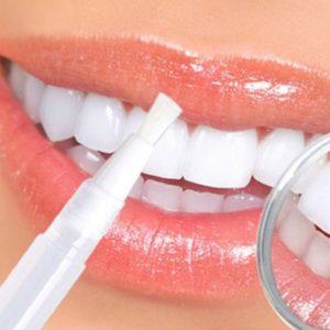 Prodotti per sbiancare i denti