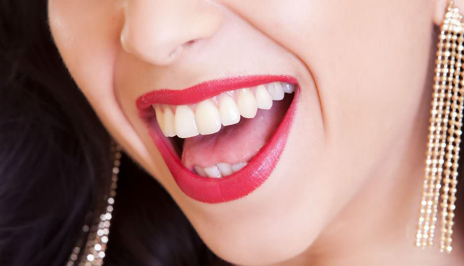 Denti bianchi: prezzi e informazioni sullo sbiancamento dentale