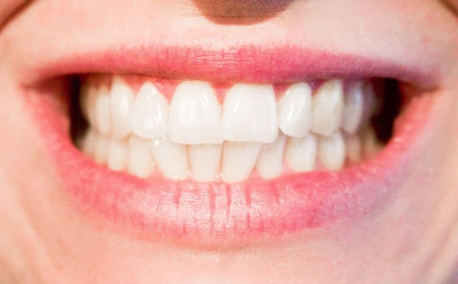Denti bianchi: quali prodotti usare