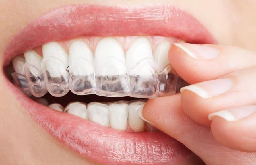 Sbiancamento dei denti cosa non fare dopo