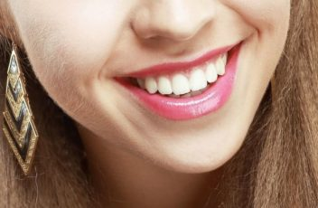 come-sbiancare-denti-sensibili