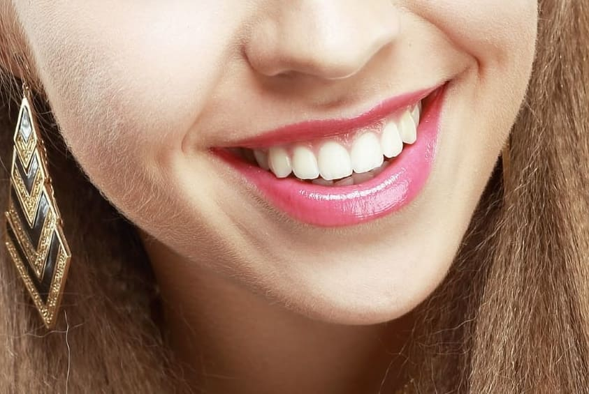 Come sbiancare i denti sensibili